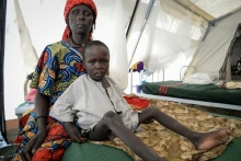 malnourished children IDPs malnutrition nigeria statistics problems of malnutrition in nigeria